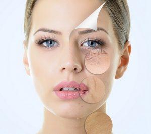 rimedio naturale macchie pelle