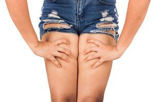 i rimedi contro la cellulite a 14 anni